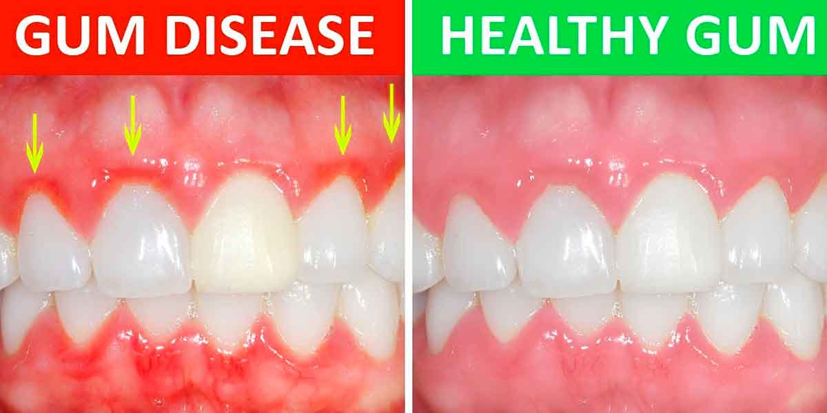 Periodontal Disease – You Might Have it and Not Even Know It